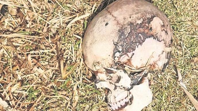 Vecinos hallan cráneo humano  detrás de un jardín de niños, en Edomex