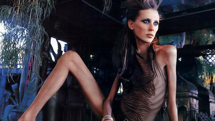 Marcas de moda buscan modelos en clínicas de anorexia