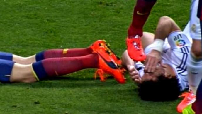 Polémico pisotón en el Real Madrid vs. Barcelona | VIDEO
