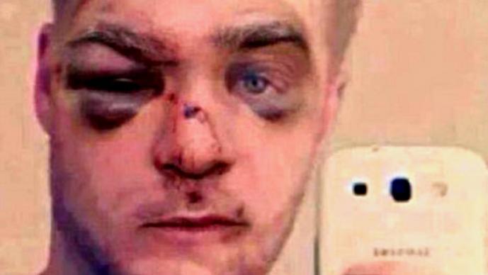 Hombre es brutalmente golpeado por maltratar a su perro   VIDEO