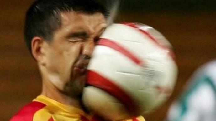 Accidentes deportivos cualquier profesional los tiene
