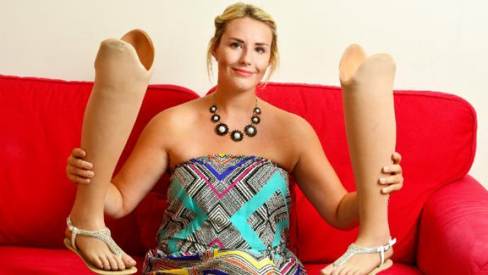 Mujer pierde las piernas y encuentra la felicidad