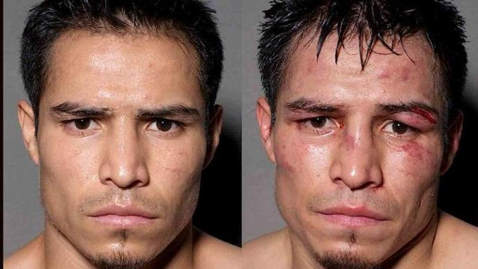 Boxeadores, antes, después, peleas
