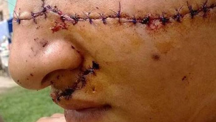 Adolescente atacada, bonita, cortan, rostro, agresión, argentina