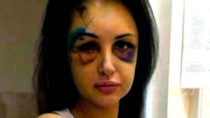 Alexandra Sereda, modelo desfigurada por un magnate ruso