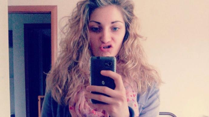 Bella rubia muere por culpa de su larga cabellera , Caterina Alzetta