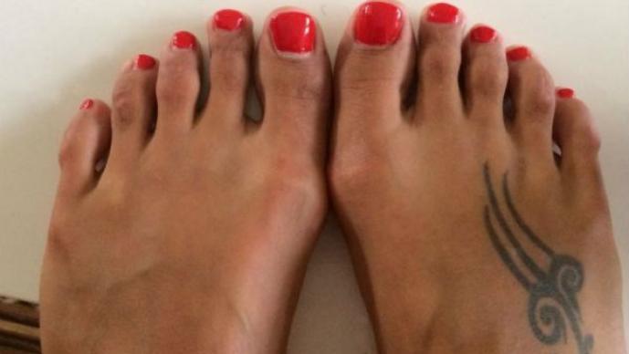 Cirugía para acortar los dedos de los pies