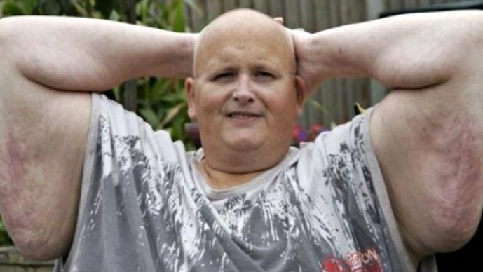 Increible transformación de un hombre que perdió 270 kilos | FOTOS
