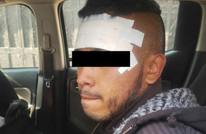 Cae hombre con brazalete electrónico, acusado de asaltar unas 20 tiendas Oxxo, en Ecatepec