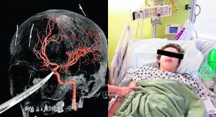 Un cuchillo le atraviesa el cráneo a joven y sobrevive, en Estados Unidos . Noticias en tiempo real