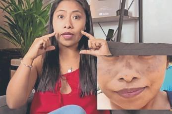 """Yalitza Aparicio revela que tiene una enfermedad en la piel, """"los famosos no son perfectos"""""""