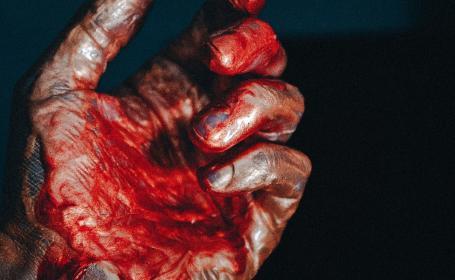 Hombre intenta golpear a la vecina y a sus hijos pero muere desangrado en el intento, en CDMX